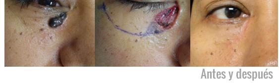 Caso resuelto de cáncer de piel