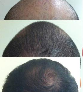 Caída de cabello, antes y después