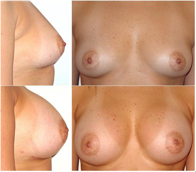 Mamoplastia en monterrey