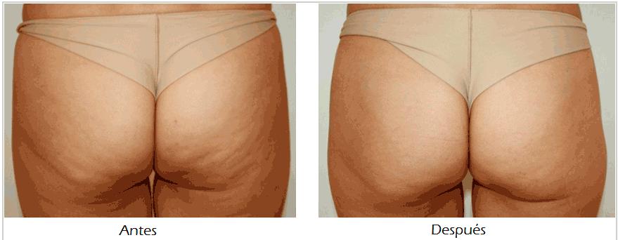 resultados - tratamiento para reduccion de celulitis en monterrey