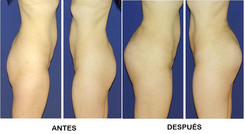 gluteoplastia en monterrey - Antes y despues