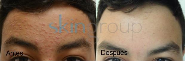 Resultados acné
