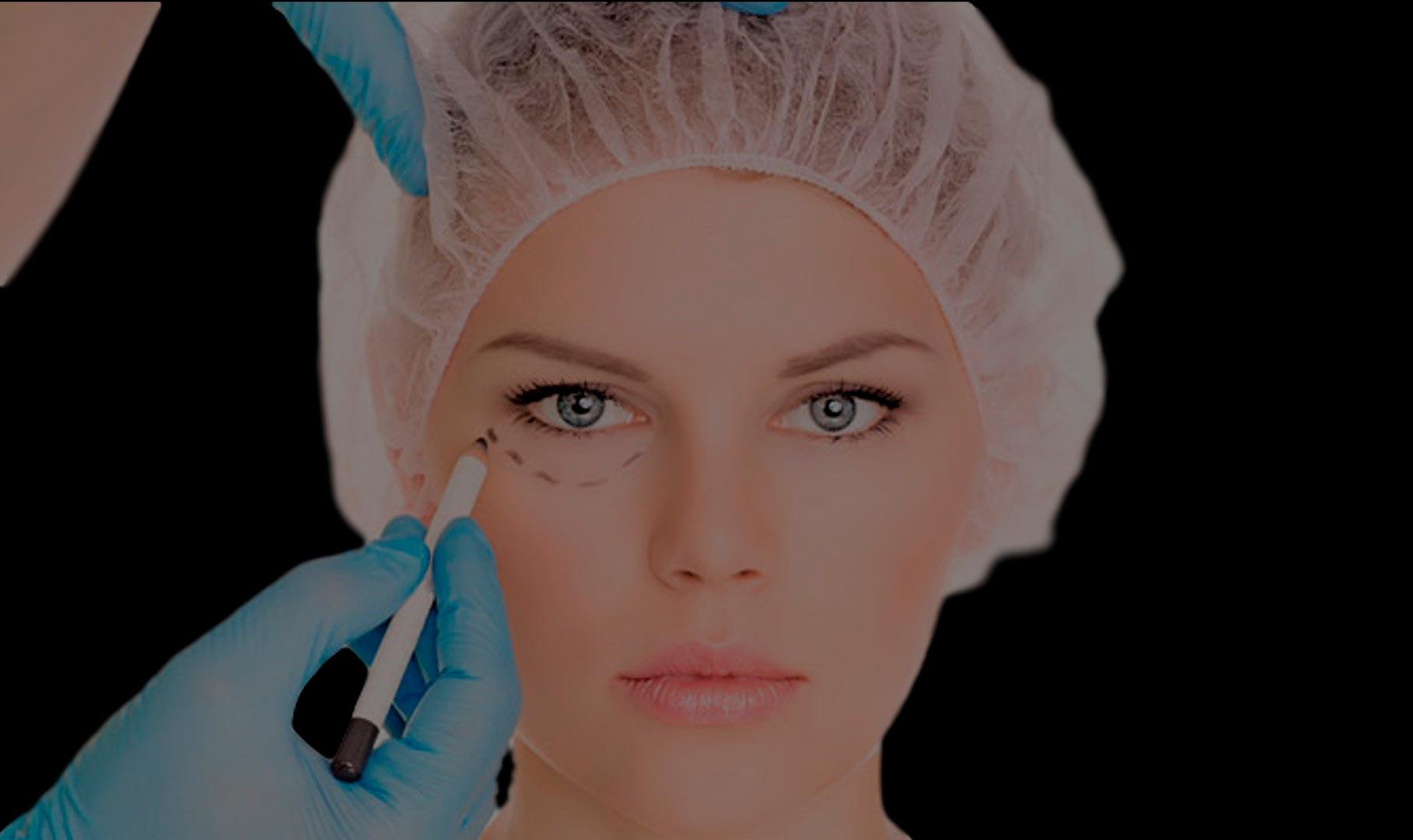 cirugia de parpados en monterrey
