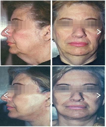 Lifting facial en Monterrey